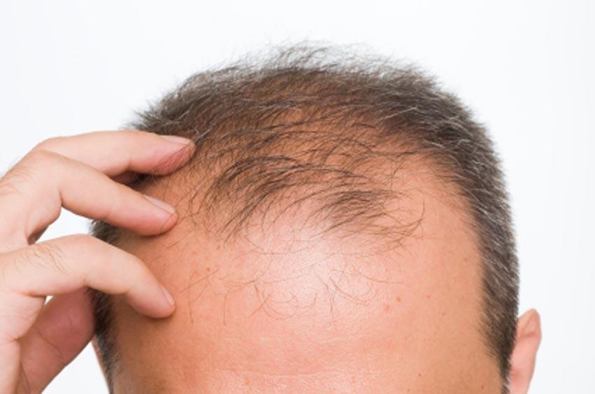 состав шампуня алерана от выпадения волос