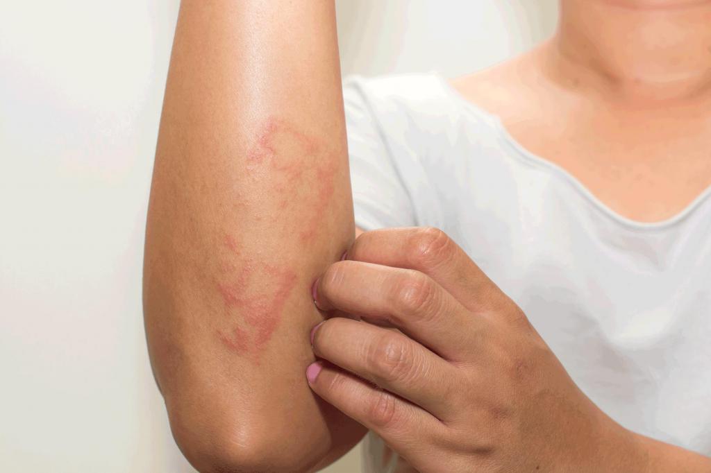 Лечить дерматит