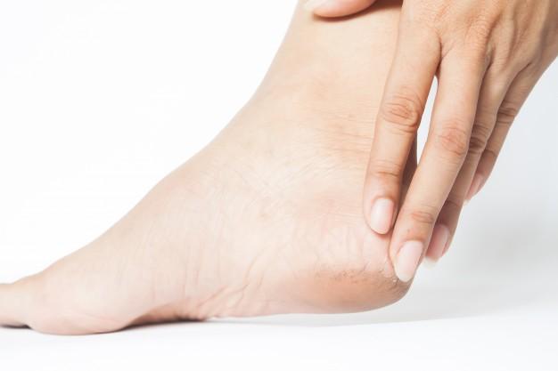 Трещины и натоптыши на ногах